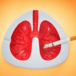 Small Cell Lung Cancer Explained